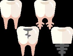 Dentes-home